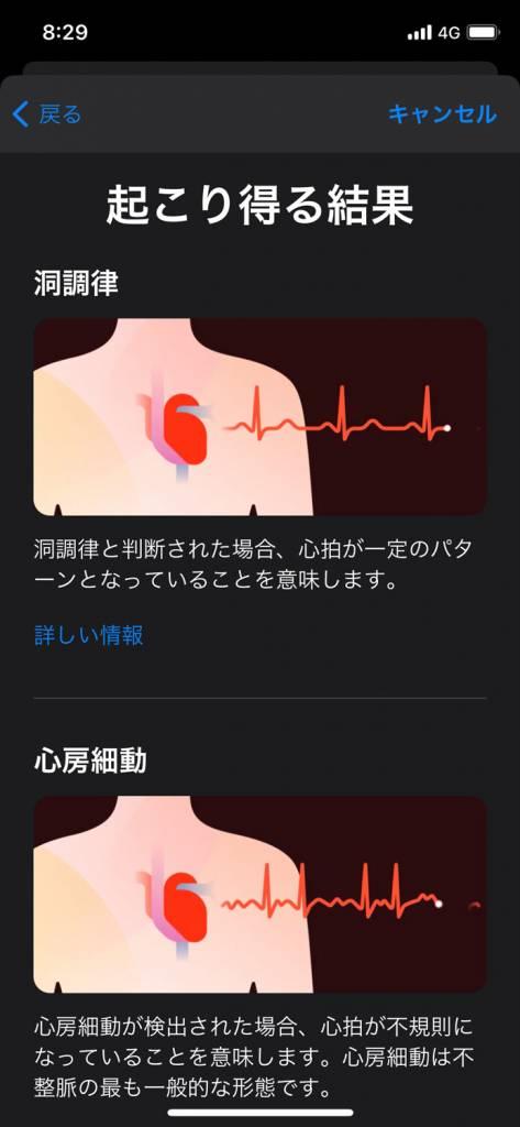 Apple Watch心電図機能アプリの使い方と設定方法